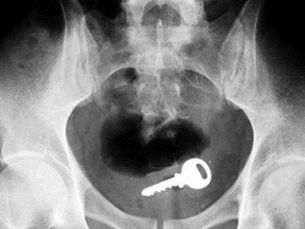 外國醫生們最愛上這個網站,分享他們所見到最奇特的X光片