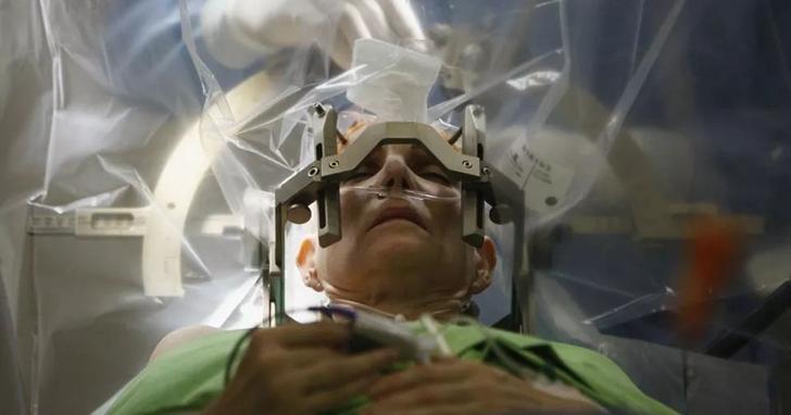 禁忌殿堂:大腦植入電極的是非功過