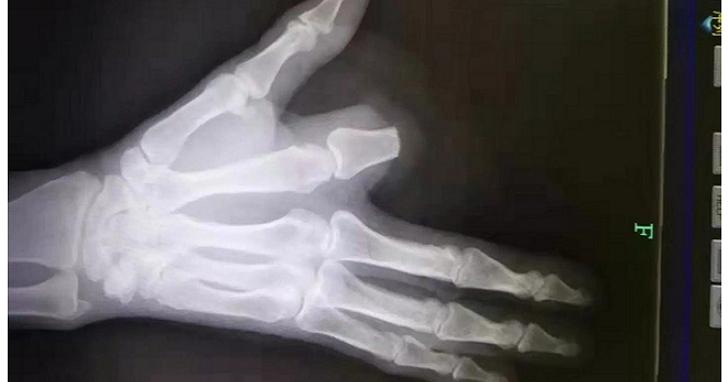 男子被蛇咬到後將手指「當機立斷」,結果醫生告訴他其實沒必要這樣做